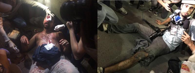 Nas imagens, homem com ferimento de bala de borracha na cabeça e jornalista da TVDrone ferido na perna por estilhaços de bombas. Fotos via MPL (esquerda) e Jornalistas Livres (direita). Uso livre.